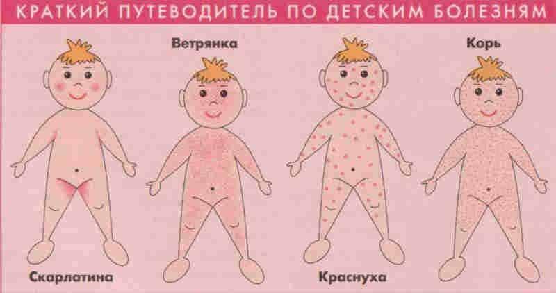 Классификация сыпи на теле ребенка